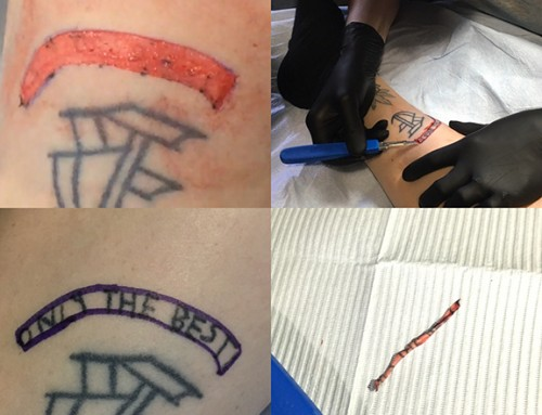 Tattoo removal via skin pealing by me