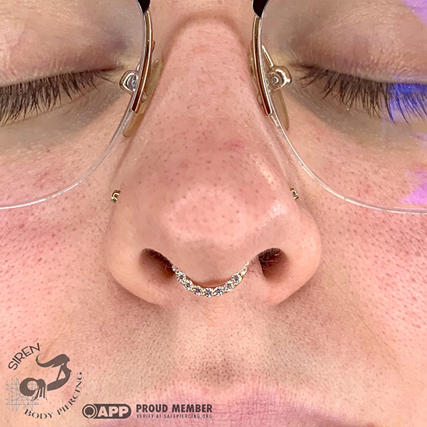 Healed matched double nostrils and septum